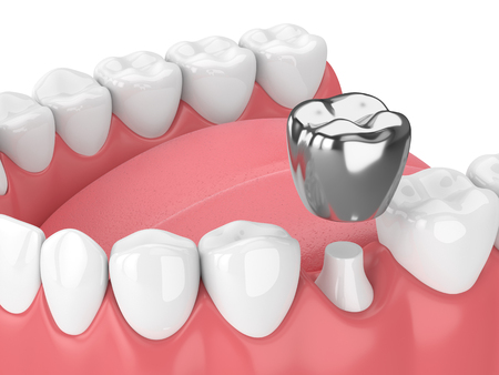 3d render of teeth with dental crown amalgam fillingover white background