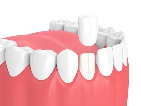 3d render of teeth with veneer over white Zdjęcie Seryjne - 101209253