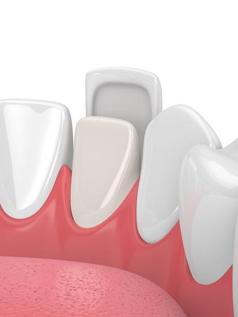 3d render of teeth with veneer over white Zdjęcie Seryjne