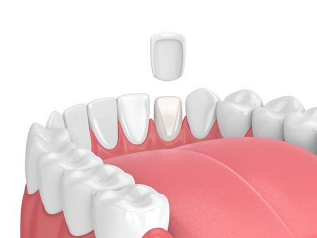 3d render of teeth with veneer over white 스톡 콘텐츠