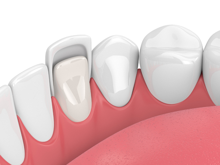 3d render of teeth with veneer over white Stockfoto