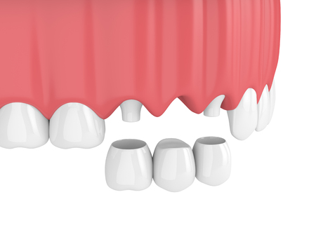 3d render of dental bridge with crowns in upper jaw isolated over white background Stock Photo