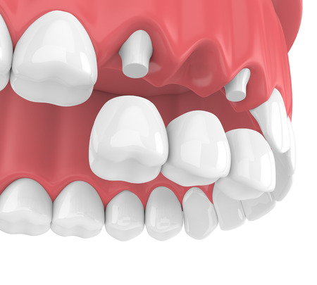 3d render of dental bridge with crowns in upper jaw isolated over white background Фото со стока