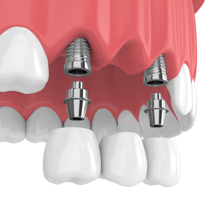 3d render of implants with dental bridge in upper jaw  isolated over white background