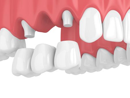 3d de puente dental con coronas en el maxilar superior aislado sobre fondo blanco. Foto de archivo