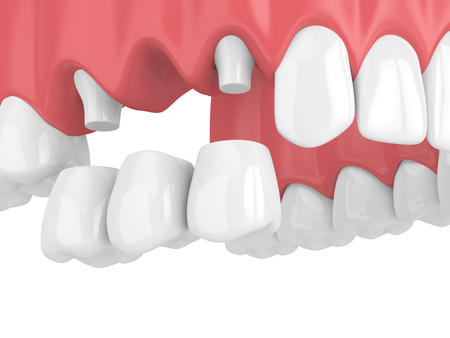 3d Rendern der Zahnbrücke mit Kronen im Oberkiefer lokalisiert über weißem Hintergrund Standard-Bild
