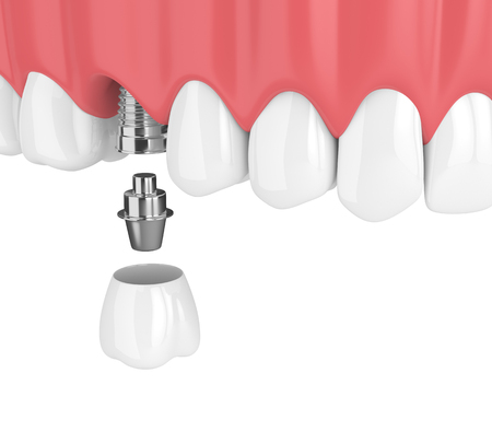 3d render of upper jaw with teeth and dental molar implant over white background Stock Photo