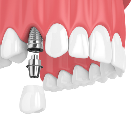 3d render of upper jaw with teeth and dental premolar implant over white background Stock Photo