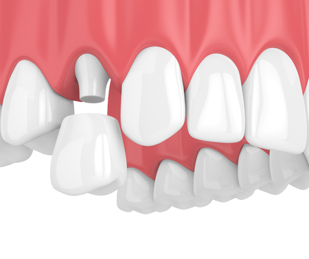 3d render of upper jaw with teeth and dental premolar crown over white background Stock Photo