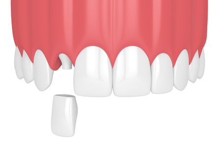 3d render of upper jaw with teeth and dental lateral incisor crown over white background Stock Photo