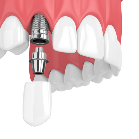 3d render of upper jaw with teeth and dental canine implant over white background