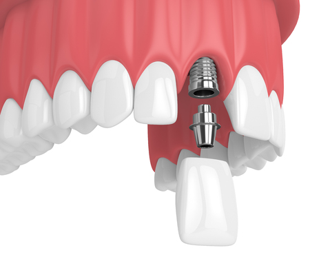 3d render of upper jaw with teeth and dental incisor implant over white background Stock Photo