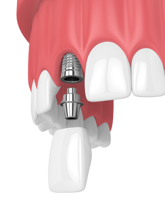 3d render of upper jaw with teeth and dental incisor implant over white background Banco de Imagens