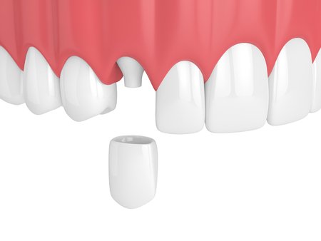 3d render of upper jaw with teeth and dental canine crown over white background