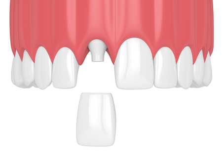 3d render of upper jaw with teeth and dental incisor crown over white background