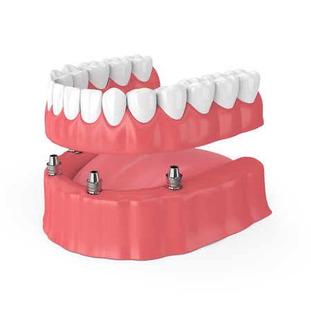 3d render of removable full implant denture isolated over white background Banque d'images - 102508529