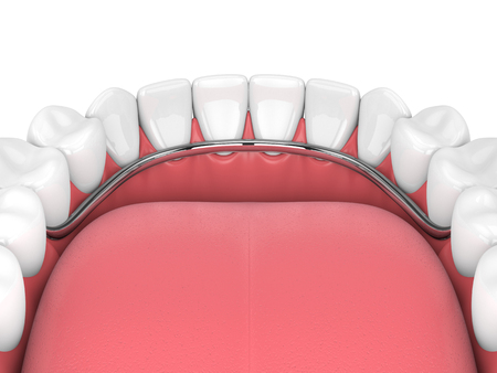 3d render of removable partial denture isolated over white background Фото со стока