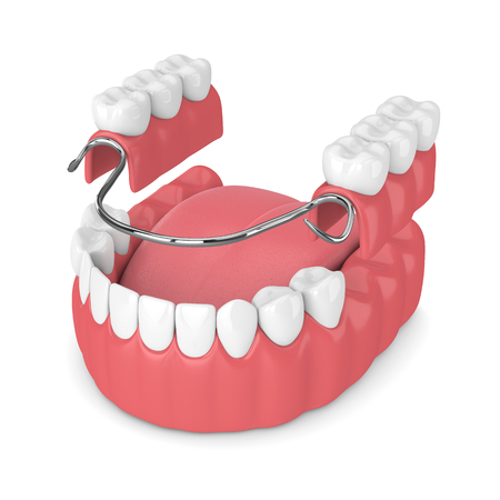 3d render of removable partial denture isolated over white background 版權商用圖片