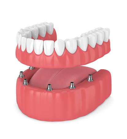 3D Render de prótesis de implante completo removible aislado sobre fondo blanco.
