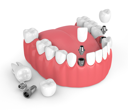 3d render of jaw with dental implants over white background