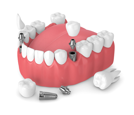 3d render of jaw with dental implants and bridges over white background Foto de archivo