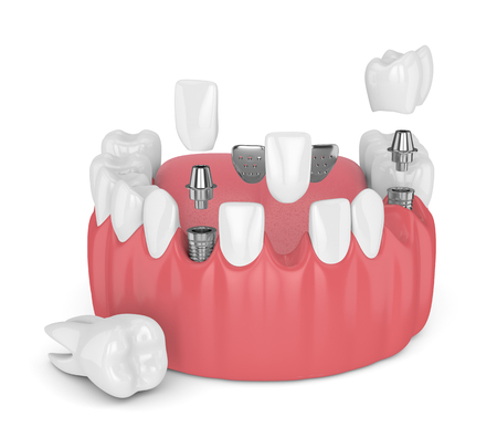 3d render of jaw with dental implants and bridges over white background Stock Photo