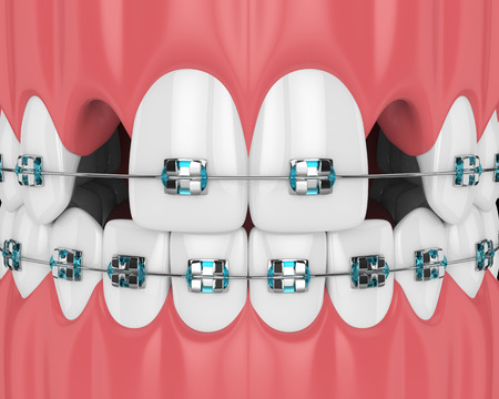 3d render of teeth with orthodontic braces and cavities. Orthodontic braces concept Stok Fotoğraf