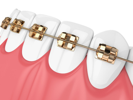 3d render of jaw with teeth and golden orthodontic braces isolated over white background