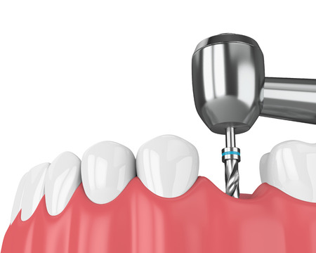 3d render of jaw with dental implant drill. Implantation process concept.