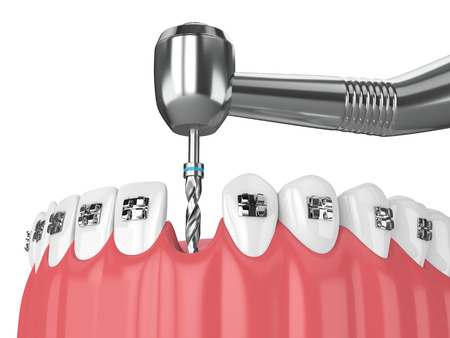 3d render of teeth with orthodontic braces and dental drill. Orthodontic braces concept