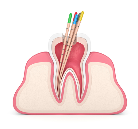 3d render of tooth in gums with gutta percha over white background