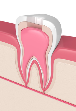 3d render of tooth in gums with root canal treatment procedure Stock Photo