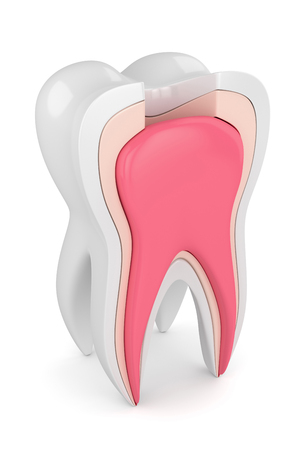3d render of tooth with root canal treatment procedure over white background