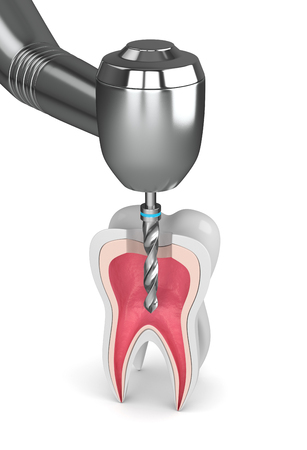 3d render of tooth with dental drill over white background