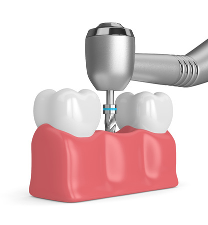 3d render of teeth with dental drill. Dental implant concept Stockfoto