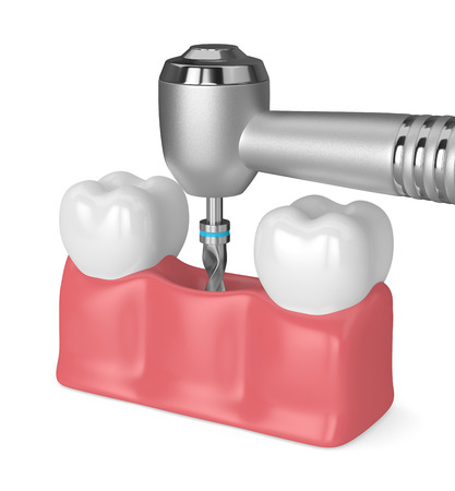 3d render of teeth with dental drill. Dental implant concept Stock Photo