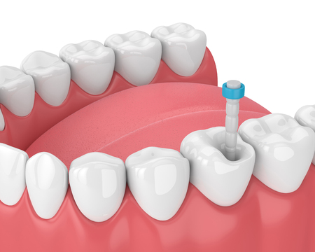 3d render of jaw with teeth and fiber post over white. Endodontic treatment concept Standard-Bild - 114502089