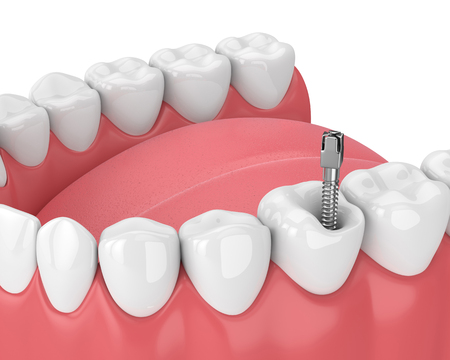 3d render of jaw with teeth and dental metal post over white. Endodontic treatment concept Standard-Bild - 114502111