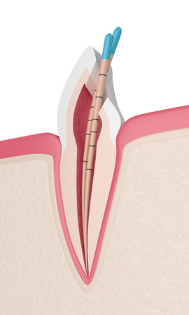 3d render of incisor tooth with gutta percha in gums. Endodontic treatment concept. Stock Photo