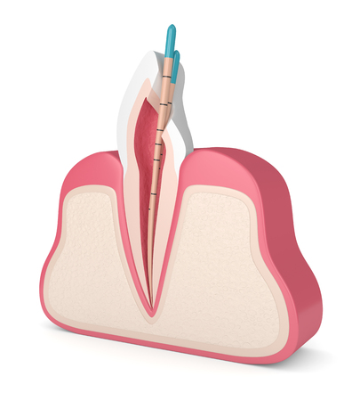 3d render of incisor tooth with gutta percha in gums over white background. Endodontic treatment concept. Stock Photo