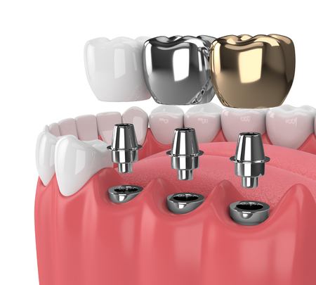 3d render of jaw with teeth and three types of implants over white Stock Photo