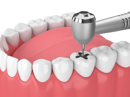 3d render of jaw with teeth, dental handpiece and drill isolated over white Stock Photo