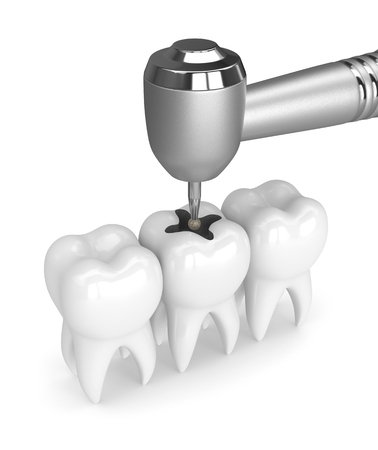3d render of teeth with dental handpiece and drill isolated over white 版權商用圖片