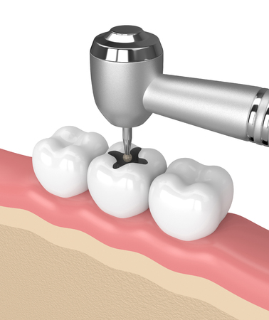 3d render of teeth with dental drill in gums over white