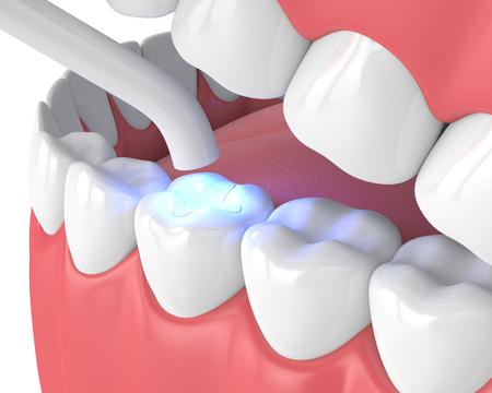 3D-Darstellung des Kiefers mit zahnärztlicher Polymerisationslampe und lichtgehärteter Inlay-Füllung auf weißem Hintergrund