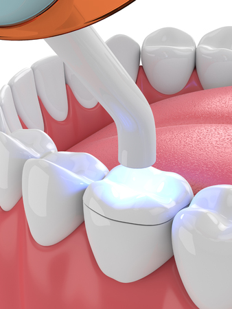 3d render of jaw with dental polymerization lamp and light cured onlay filling over white background Standard-Bild - 115842746