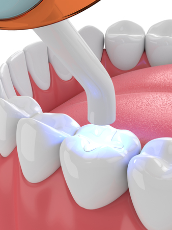 3d render of jaw with dental polymerization lamp and light cured inlay filling over white background Standard-Bild - 115842747