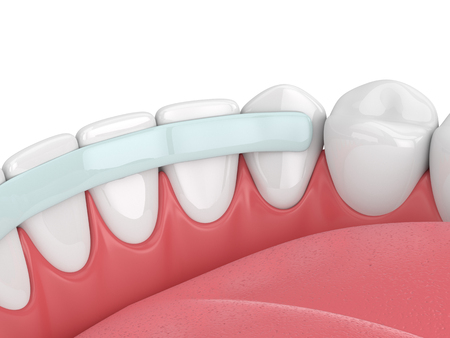 3d render of  teeth with dental reinforcement fiber over white Stock Photo
