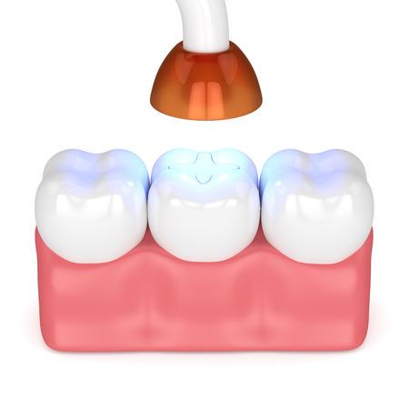 3D-Darstellung von Zähnen mit zahnärztlicher Polymerisationslampe und lichtgehärteter Inlay-Füllung auf weißem Hintergrund