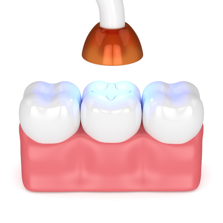 3d render of teeth with dental polymerization lamp and light cured inlay filling over white background